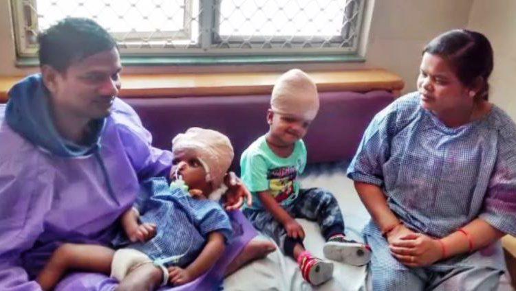 Seperated Conjoined Twins Jaga & Kalia To Return To Odisha Soon